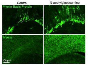 ¿N-acetilglucosamina para reparar la mielina en la esclerosis múltiple?